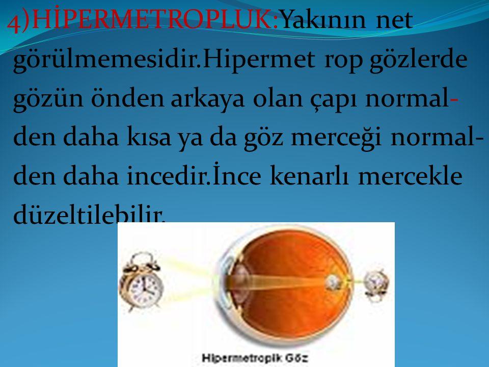 4)HİPERMETROPLUK:Yakının net görülmemesidir.Hipermet rop gözlerde gözün önden arkaya olan çapı normal- den daha kısa ya da göz merceği normal- den dah