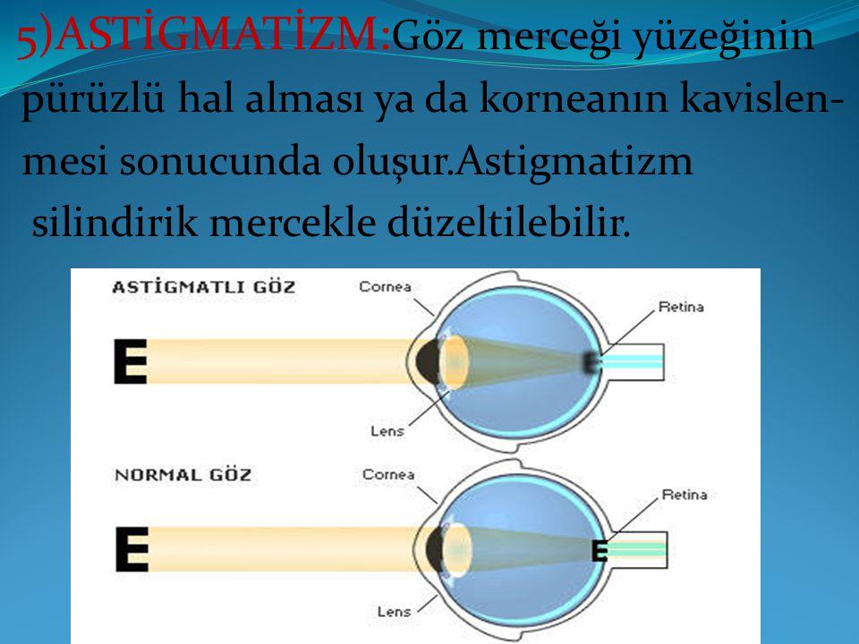 5)ASTİGMATİZM: Göz merceği yüzeğinin pürüzlü hal alması ya da korneanın kavislen- mesi sonucunda oluşur.Astigmatizm silindirik mercekle düzeltilebilir