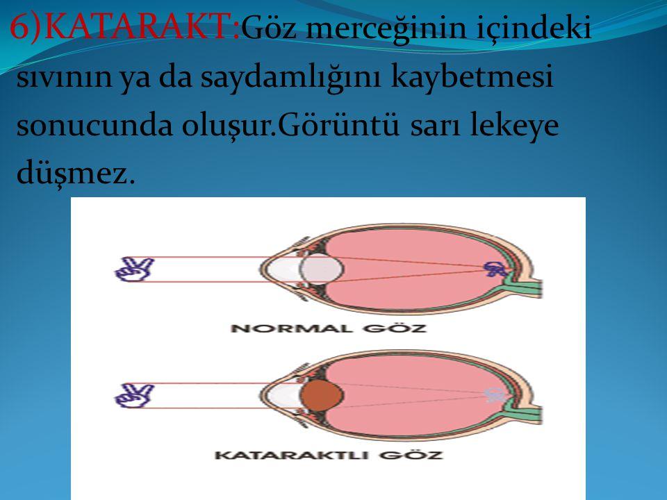 6)KATARAKT: Göz merceğinin içindeki sıvının ya da saydamlığını kaybetmesi sonucunda oluşur.Görüntü sarı lekeye düşmez.