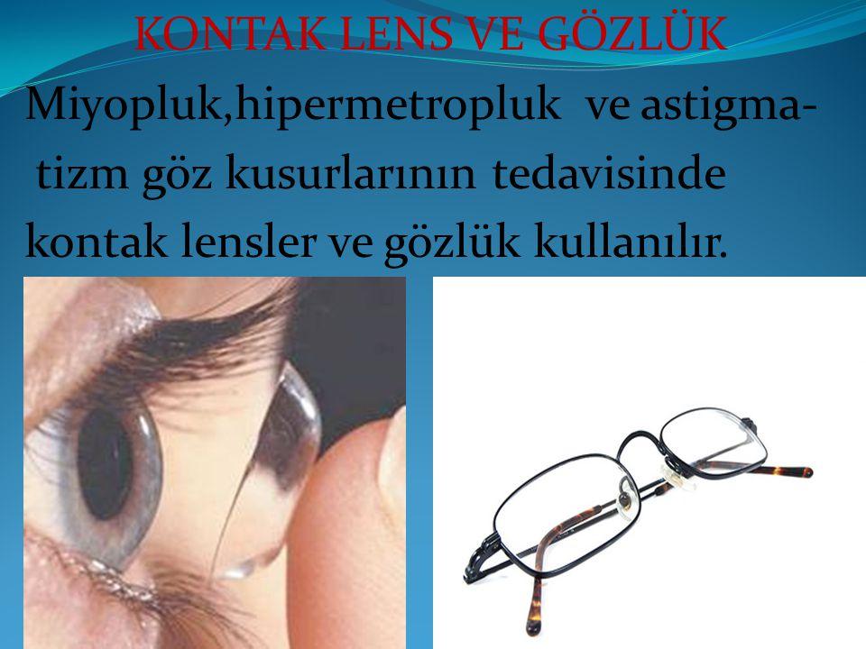 KONTAK LENS VE GÖZLÜK Miyopluk,hipermetropluk ve astigma- tizm göz kusurlarının tedavisinde kontak lensler ve gözlük kullanılır.