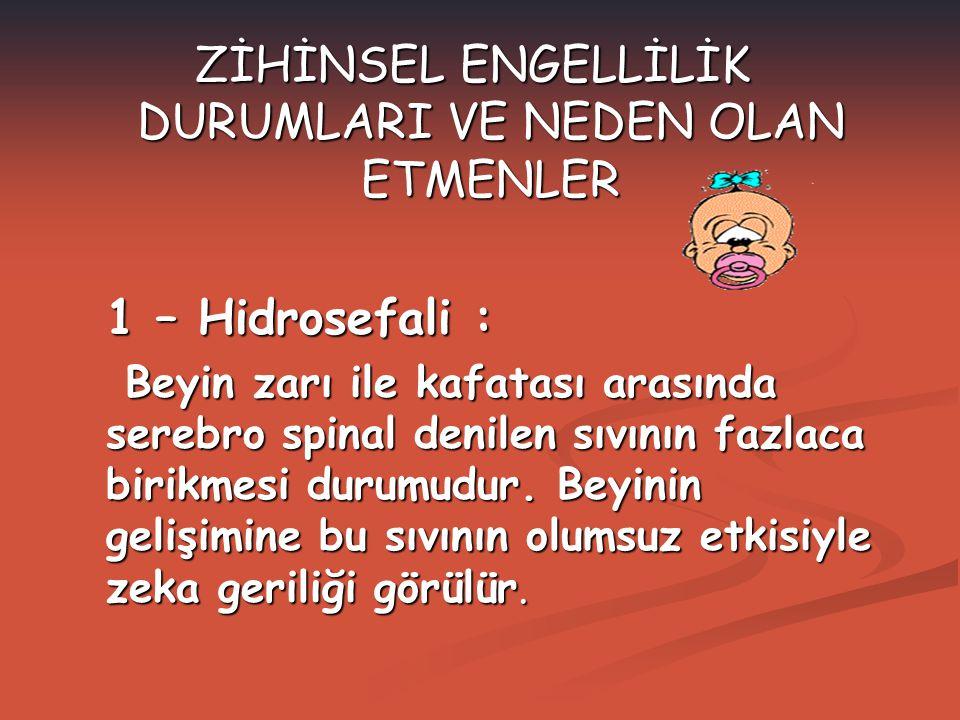 ZİHİNSEL ENGELLİLİK DURUMLARI VE NEDEN OLAN ETMENLER 1 – Hidrosefali : Beyin zarı ile kafatası arasında serebro spinal denilen sıvının fazlaca birikme