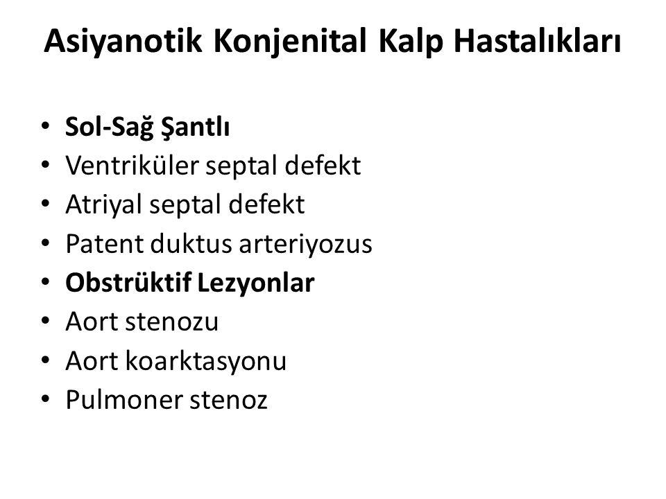 Asiyanotik Konjenital Kalp Hastalıkları • Sol-Sağ Şantlı • Ventriküler septal defekt • Atriyal septal defekt • Patent duktus arteriyozus • Obstrüktif Lezyonlar • Aort stenozu • Aort koarktasyonu • Pulmoner stenoz
