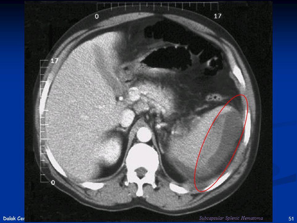 51Dalak Cerrahisi Subcapsular Splenic Hematoma