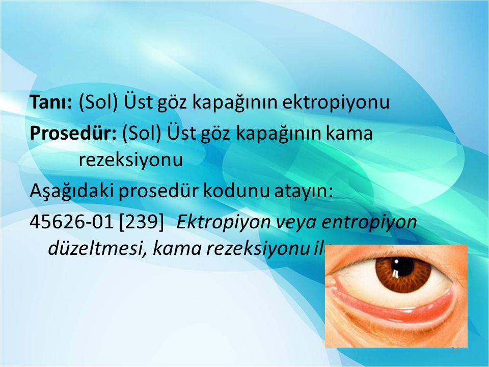 Tanı:(Sol) Üst göz kapağının ektropiyonu Prosedür: (Sol) Üst göz kapağının kama rezeksiyonu Aşağıdaki prosedür kodunu atayın: 45626-01 [239]Ektropiyon
