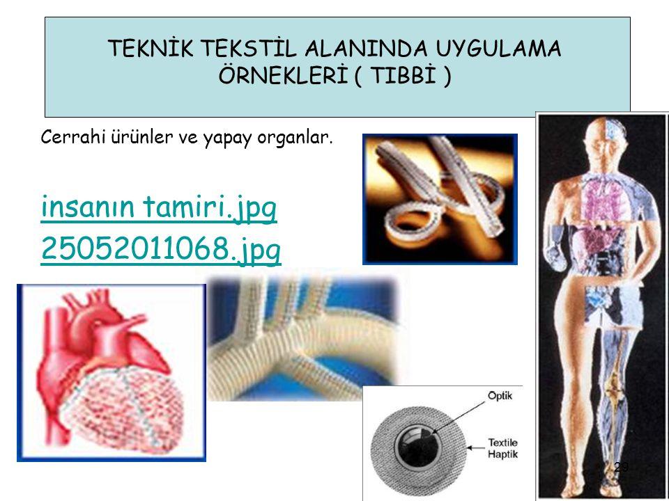 TEKNİK TEKSTİL ALANINDA UYGULAMA ÖRNEKLERİ ( TIBBİ ) insanın tamiri.jpg 25052011068.jpg Cerrahi ürünler ve yapay organlar. 29