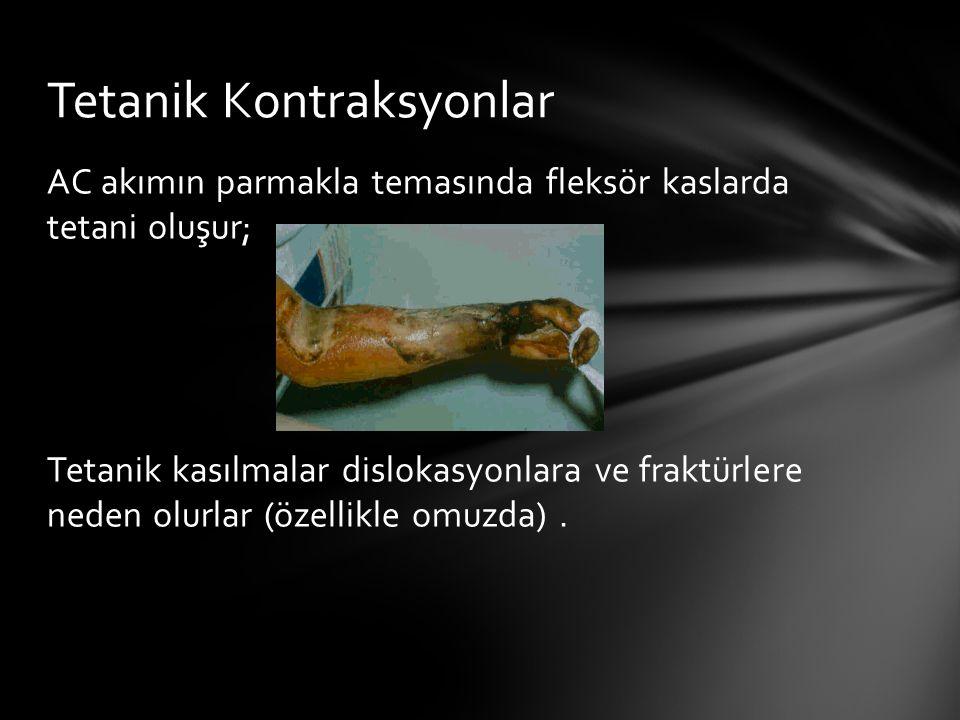 AC akımın parmakla temasında fleksör kaslarda tetani oluşur; Tetanik kasılmalar dislokasyonlara ve fraktürlere neden olurlar (özellikle omuzda). Tetan