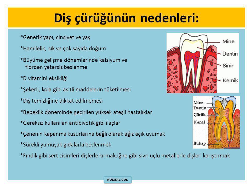 Diş çürüğünün nedenleri: *Genetik yapı, cinsiyet ve yaş *Hamilelik, sık ve çok sayıda doğum *Büyüme gelişme dönemlerinde kalsiyum ve florden yetersiz