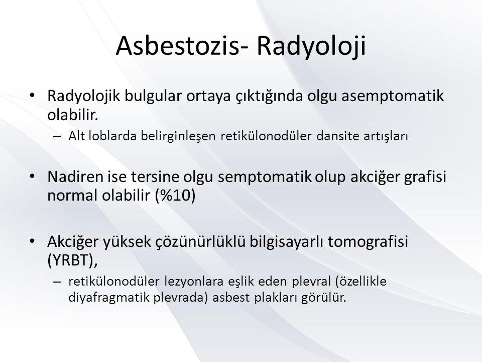 Asbestozis- Radyoloji • Radyolojik bulgular ortaya çıktığında olgu asemptomatik olabilir.