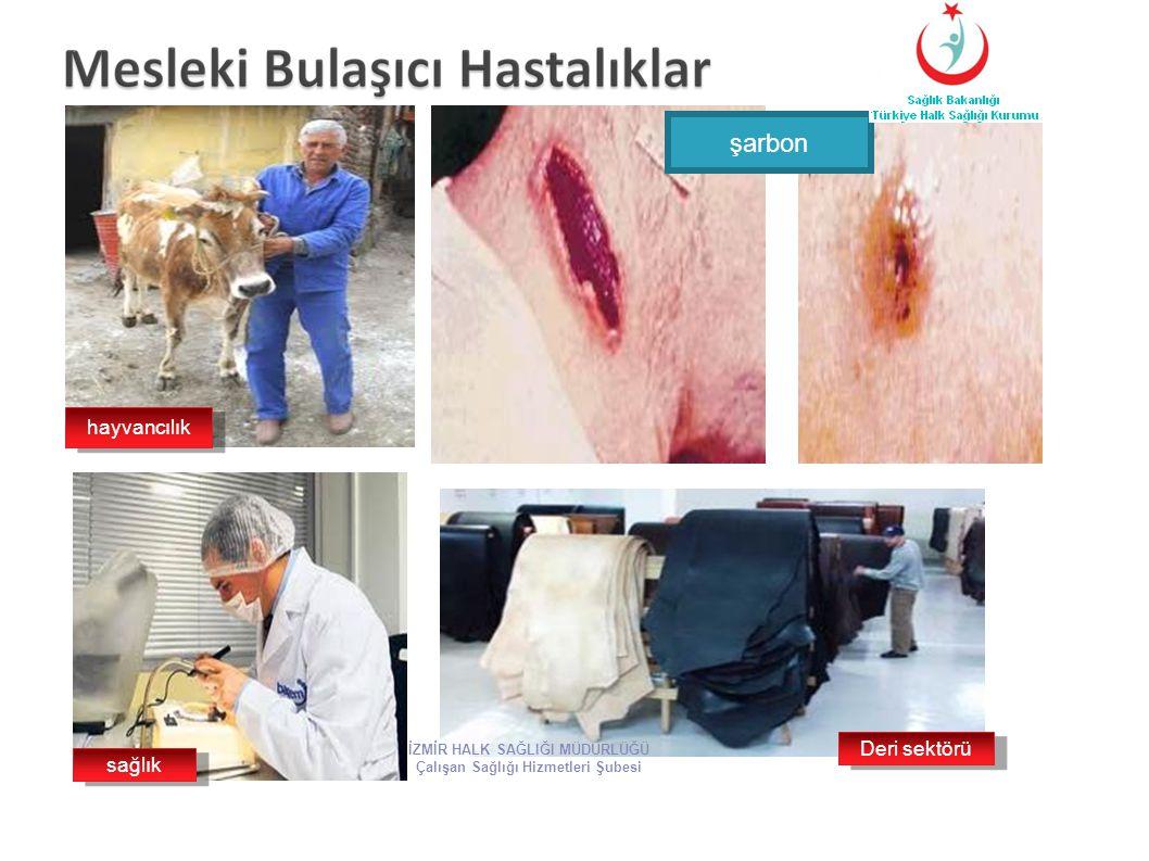 şarbon hayvancılık sağlık Deri sektörü İZMİR HALK SAĞLIĞI MÜDÜRLÜĞÜ Çalışan Sağlığı Hizmetleri Şubesi