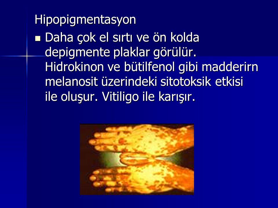 Hipopigmentasyon  Daha çok el sırtı ve ön kolda depigmente plaklar görülür. Hidrokinon ve bütilfenol gibi madderirn melanosit üzerindeki sitotoksik e