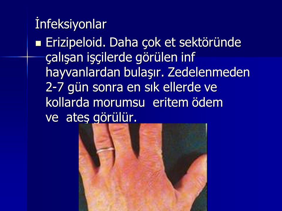 İnfeksiyonlar  Erizipeloid. Daha çok et sektöründe çalışan işçilerde görülen inf hayvanlardan bulaşır. Zedelenmeden 2-7 gün sonra en sık ellerde ve k