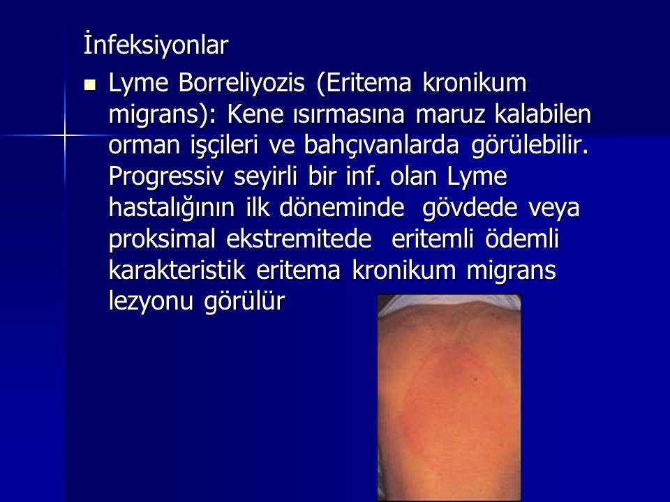 İnfeksiyonlar  Lyme Borreliyozis (Eritema kronikum migrans): Kene ısırmasına maruz kalabilen orman işçileri ve bahçıvanlarda görülebilir. Progressiv