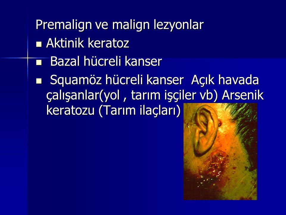 Premalign ve malign lezyonlar  Aktinik keratoz  Bazal hücreli kanser  Squamöz hücreli kanser Açık havada çalışanlar(yol, tarım işçiler vb) Arsenik