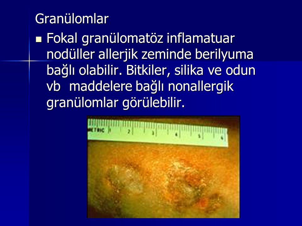 Granülomlar  Fokal granülomatöz inflamatuar nodüller allerjik zeminde berilyuma bağlı olabilir. Bitkiler, silika ve odun vb maddelere bağlı nonallerg