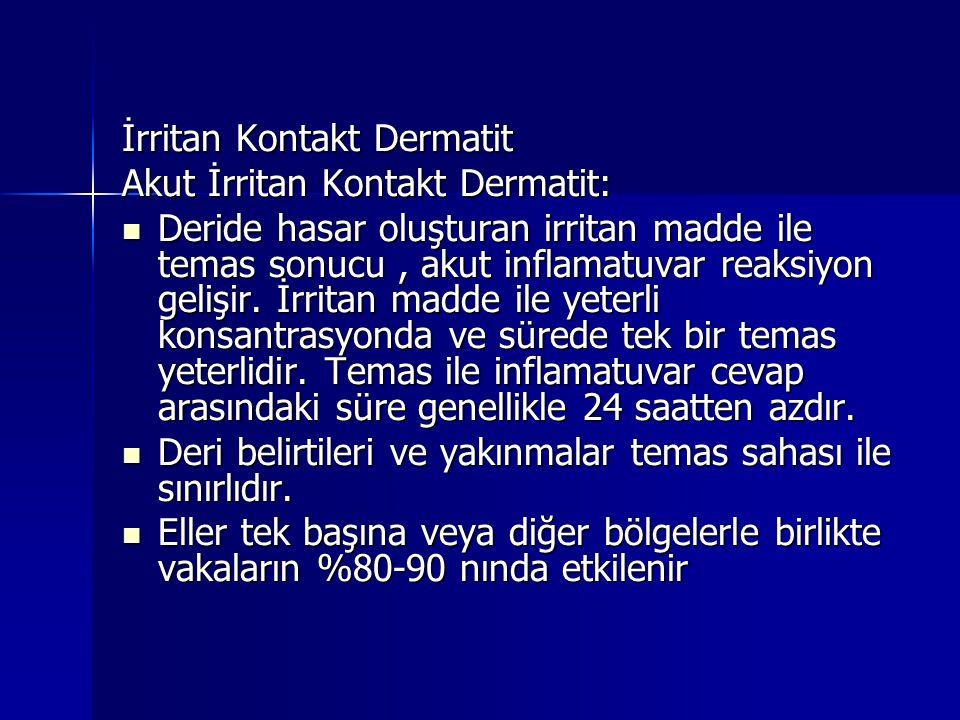 İrritan Kontakt Dermatit Akut İrritan Kontakt Dermatit:  Deride hasar oluşturan irritan madde ile temas sonucu, akut inflamatuvar reaksiyon gelişir.