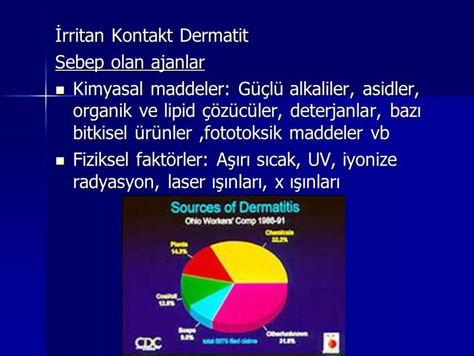 İrritan Kontakt Dermatit Sebep olan ajanlar  Kimyasal maddeler: Güçlü alkaliler, asidler, organik ve lipid çözücüler, deterjanlar, bazı bitkisel ürün