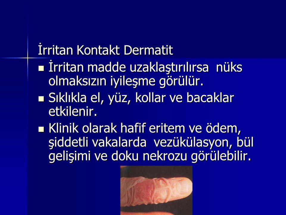 İrritan Kontakt Dermatit  İrritan madde uzaklaştırılırsa nüks olmaksızın iyileşme görülür.  Sıklıkla el, yüz, kollar ve bacaklar etkilenir.  Klinik