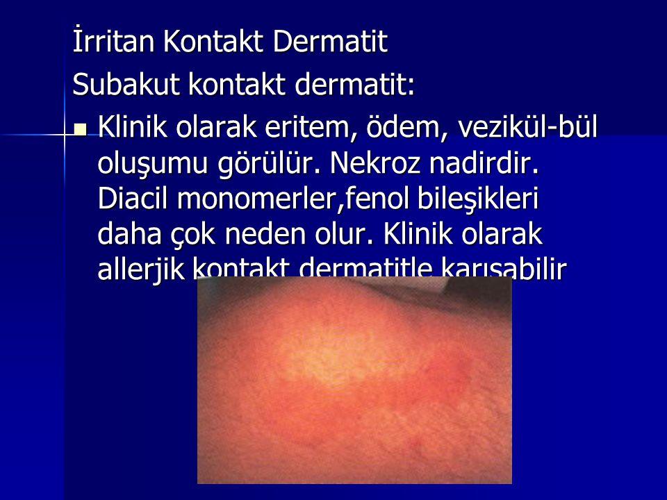 Subakut kontakt dermatit:  Klinik olarak eritem, ödem, vezikül-bül oluşumu görülür. Nekroz nadirdir. Diacil monomerler,fenol bileşikleri daha çok ned