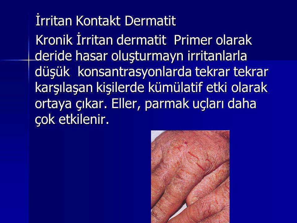 İrritan Kontakt Dermatit Kronik İrritan dermatit Primer olarak deride hasar oluşturmayn irritanlarla düşük konsantrasyonlarda tekrar tekrar karşılaşan