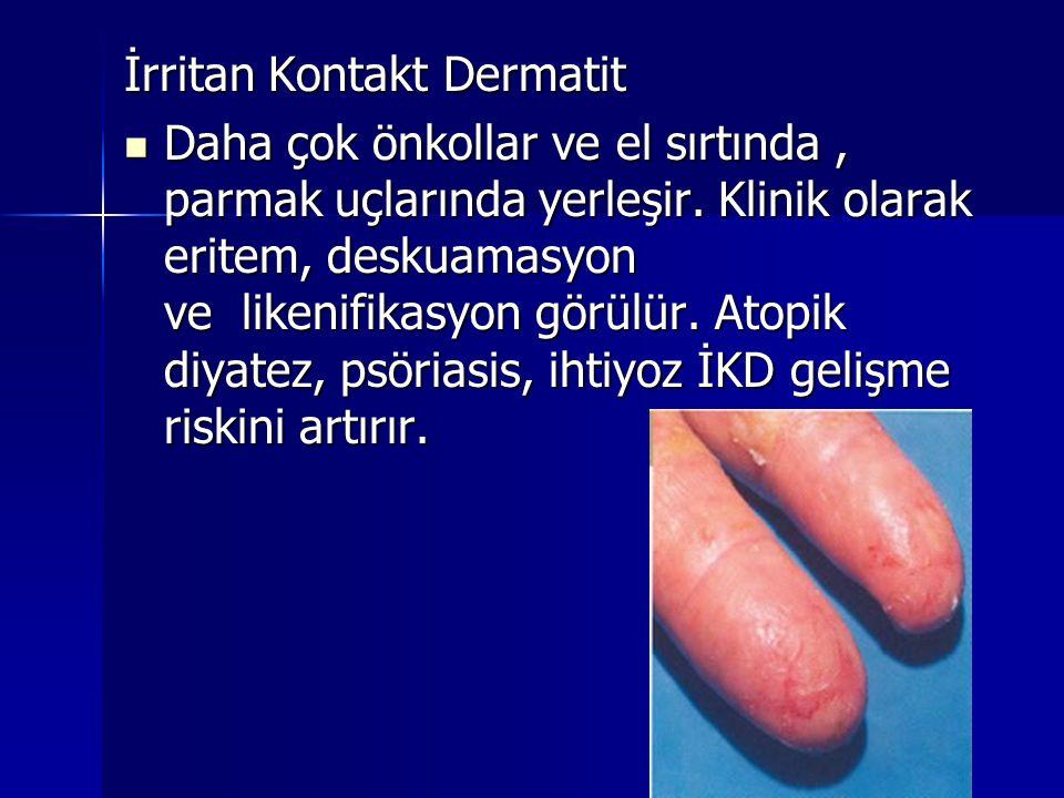 İrritan Kontakt Dermatit  Daha çok önkollar ve el sırtında, parmak uçlarında yerleşir. Klinik olarak eritem, deskuamasyon ve likenifikasyon görülür.