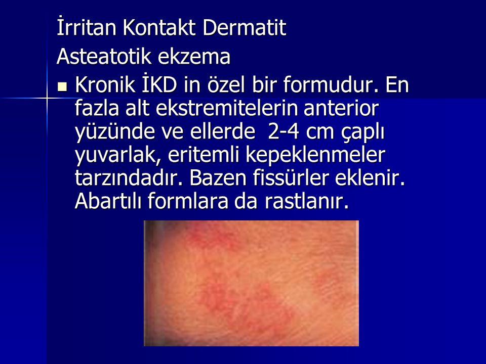 Asteatotik ekzema  Kronik İKD in özel bir formudur. En fazla alt ekstremitelerin anterior yüzünde ve ellerde 2-4 cm çaplı yuvarlak, eritemli kepeklen
