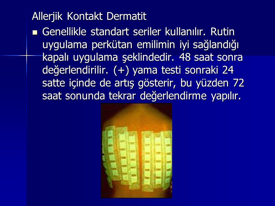 Allerjik Kontakt Dermatit  Genellikle standart seriler kullanılır. Rutin uygulama perkütan emilimin iyi sağlandığı kapalı uygulama şeklindedir. 48 sa