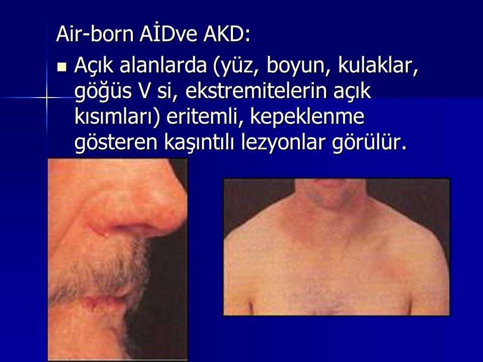 Air-born AİDve AKD:  Açık alanlarda (yüz, boyun, kulaklar, göğüs V si, ekstremitelerin açık kısımları) eritemli, kepeklenme gösteren kaşıntılı lezyon
