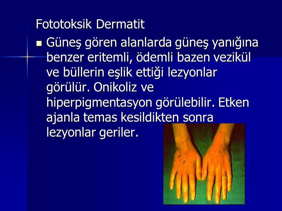 Fototoksik Dermatit  Güneş gören alanlarda güneş yanığına benzer eritemli, ödemli bazen vezikül ve büllerin eşlik ettiği lezyonlar görülür. Onikoliz