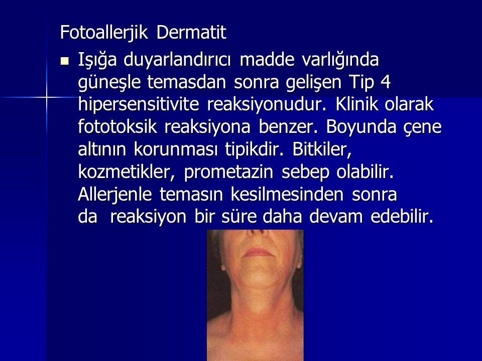 Fotoallerjik Dermatit  Işığa duyarlandırıcı madde varlığında güneşle temasdan sonra gelişen Tip 4 hipersensitivite reaksiyonudur. Klinik olarak fotot