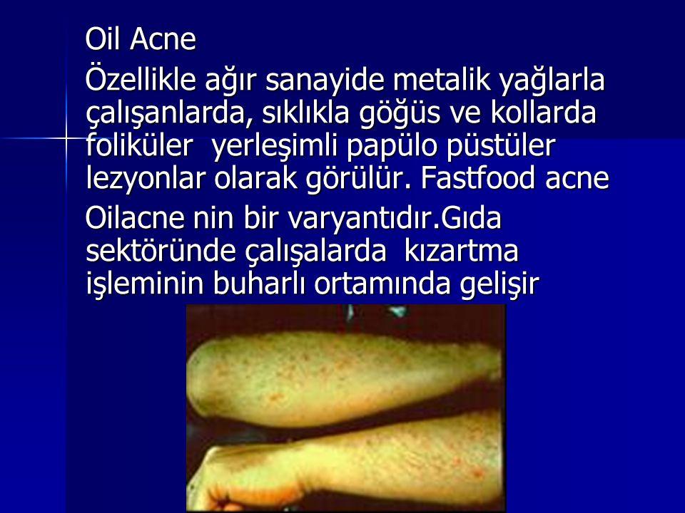 Oil Acne Özellikle ağır sanayide metalik yağlarla çalışanlarda, sıklıkla göğüs ve kollarda foliküler yerleşimli papülo püstüler lezyonlar olarak görül