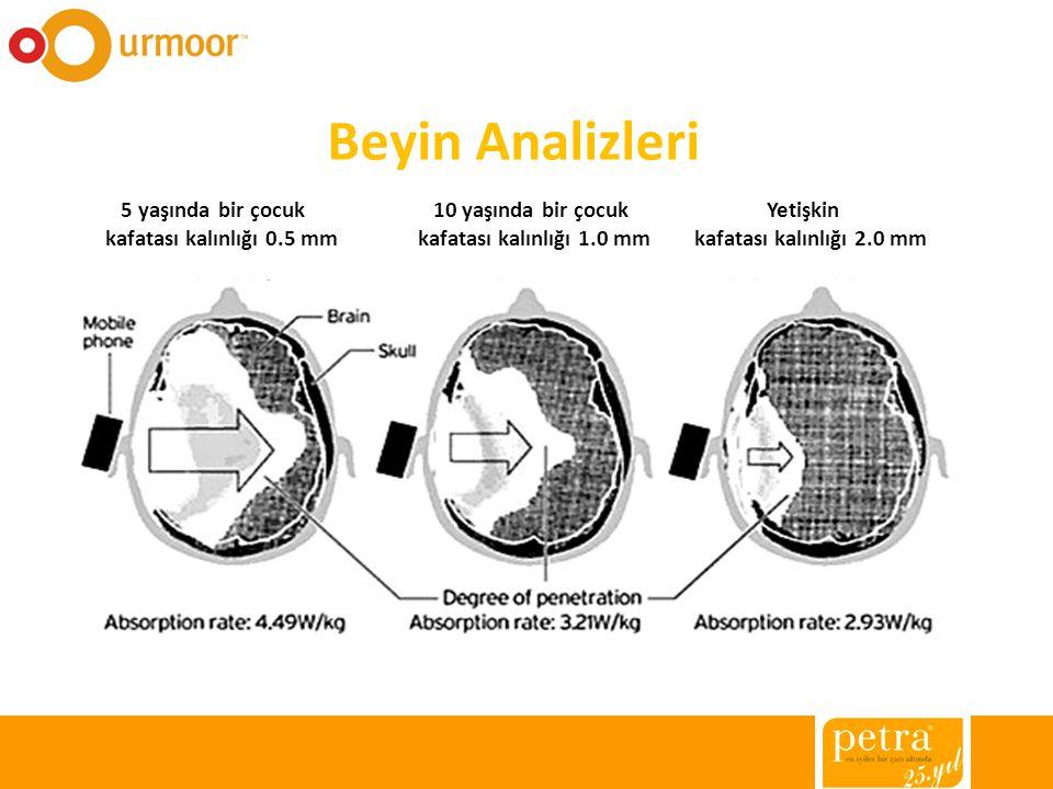 Beyin Analizleri 5 yaşında bir çocuk 10 yaşında bir çocuk Yetişkin kafatası kalınlığı 0.5 mm kafatası kalınlığı 1.0 mm kafatası kalınlığı 2.0 mm