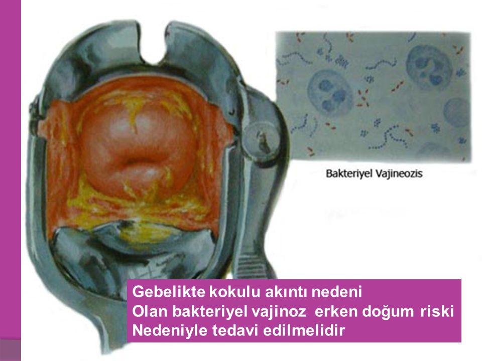 Gebelikte kokulu akıntı nedeni Olan bakteriyel vajinoz erken doğum riski Nedeniyle tedavi edilmelidir