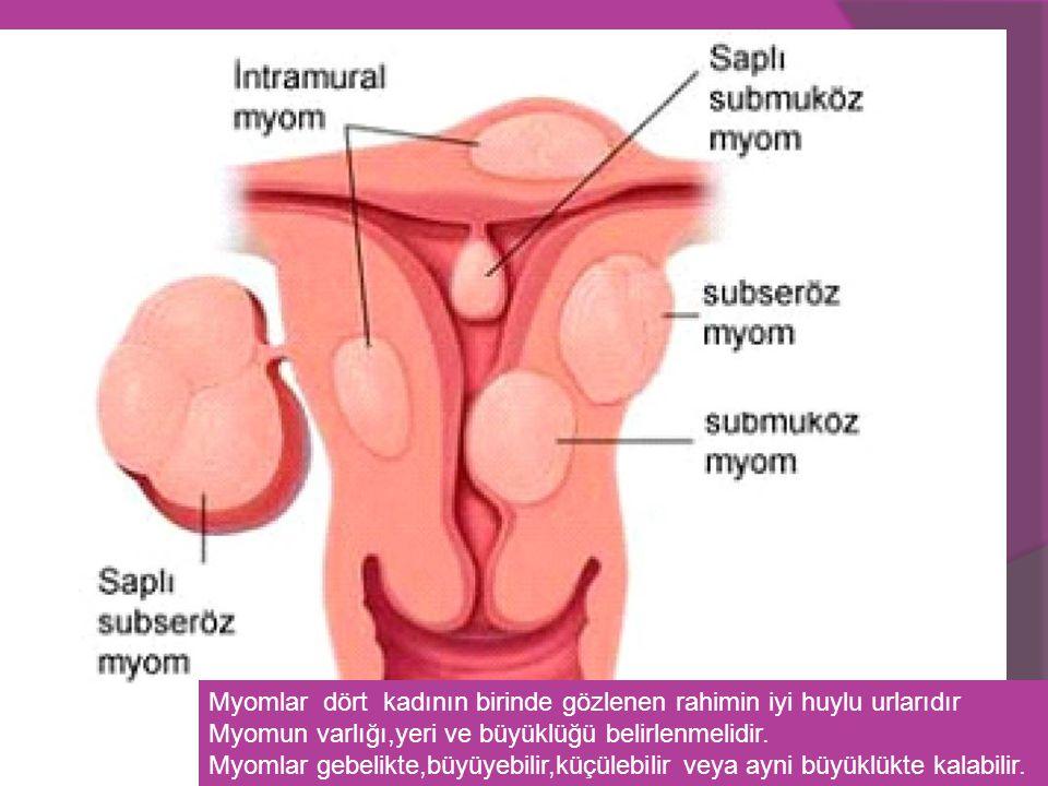 Myomlar dört kadının birinde gözlenen rahimin iyi huylu urlarıdır Myomun varlığı,yeri ve büyüklüğü belirlenmelidir. Myomlar gebelikte,büyüyebilir,küçü