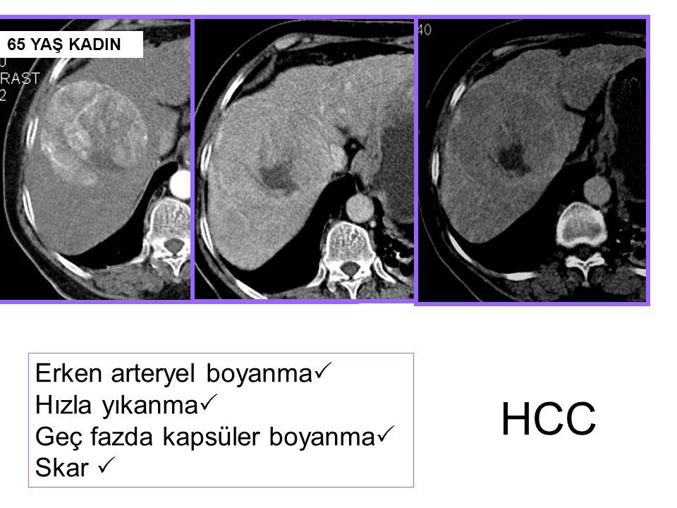 Sonuç II erken evre (3 lezyon / < 3 cm)  BCLC  HR ilk seçenek  Normal Portal basınç ve Biluribin düzeyi  Komorbid hastalık yok  RFA  Yüksek Portal basınç ve Biluribin düzeyi  Komorbid hastalık var