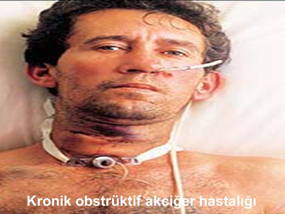 Sigara içiminin uzun dönemde zararları: kronik hastalıklar Beyin felci Koroner kalp hastalığı (KKH) Kronik obstrüktif akciğer hastalığı Aterosklerotik
