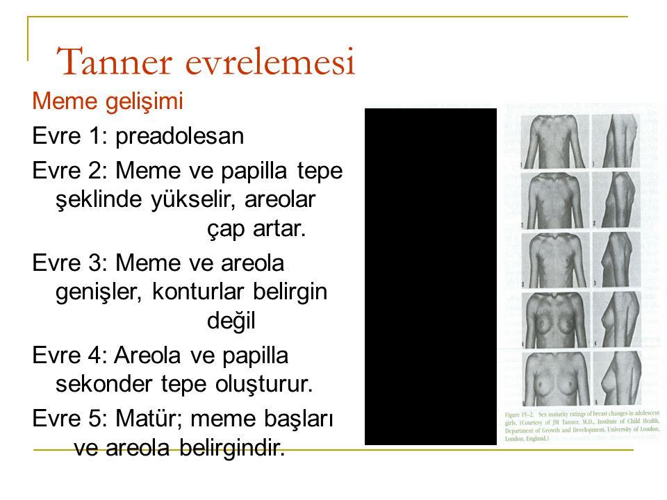Tanner evrelemesi Meme gelişimi Evre 1: preadolesan Evre 2: Meme ve papilla tepe şeklinde yükselir, areolar çap artar. Evre 3: Meme ve areola genişler