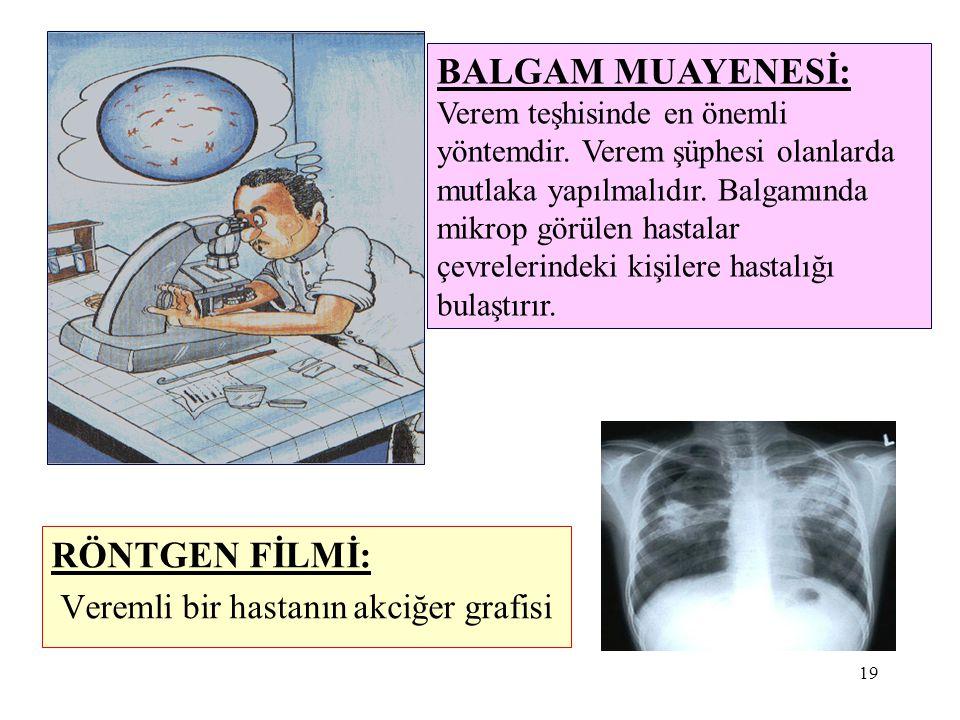 19 RÖNTGEN FİLMİ: Veremli bir hastanın akciğer grafisi BALGAM MUAYENESİ: Verem teşhisinde en önemli yöntemdir. Verem şüphesi olanlarda mutlaka yapılma