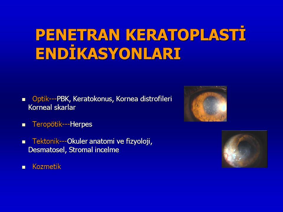 PENETRAN KERATOPLASTİ ENDİKASYONLARI  Optik---PBK, Keratokonus, Kornea distrofileri Korneal skarlar Korneal skarlar  Teropötik---Herpes  Tektonik--