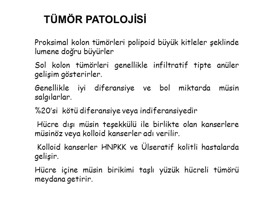 Proksimal kolon tümörleri polipoid büyük kitleler şeklinde lumene doğru büyürler Sol kolon tümörleri genellikle infiltratif tipte anüler gelişim göste