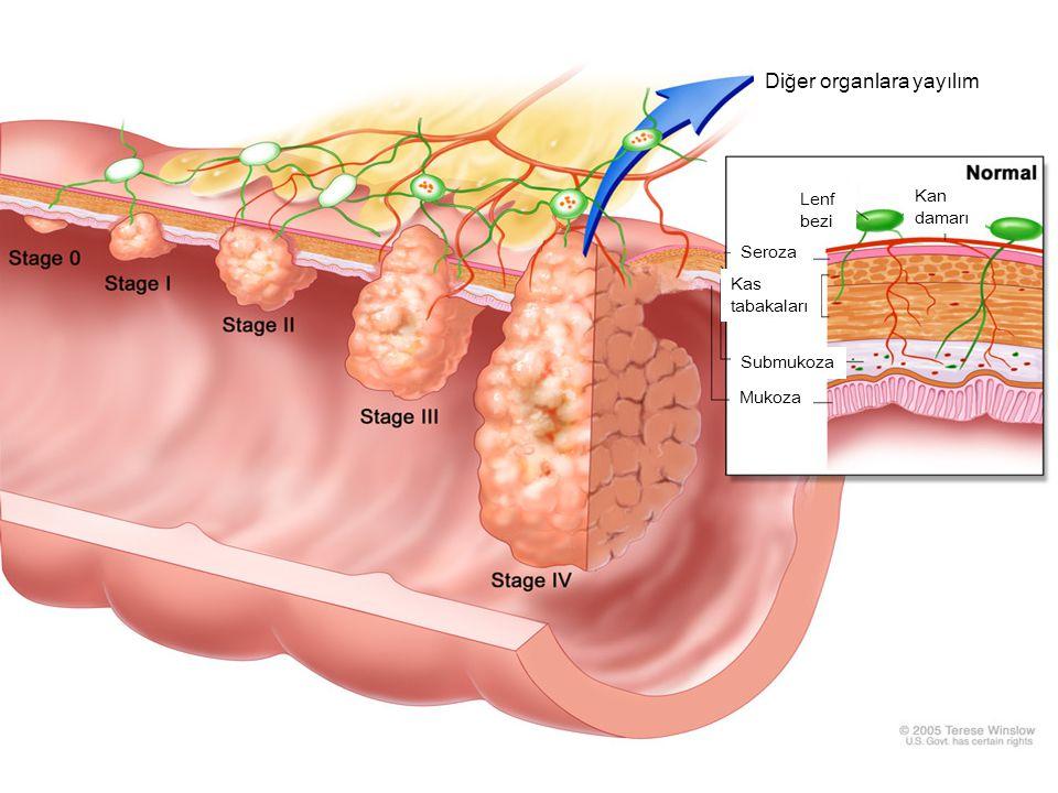 Diğer organlara yayılım Kas tabakaları Seroza Submukoza Mukoza Lenf bezi Kan damarı