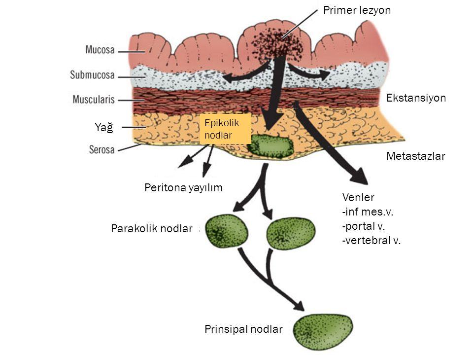 Primer lezyon Ekstansiyon Peritona yayılım Parakolik nodlar Prinsipal nodlar Epikolik nodlar Metastazlar Venler -inf mes.v. -portal v. -vertebral v. Y