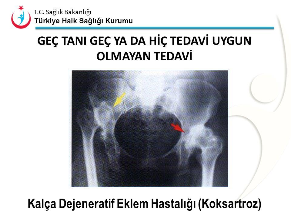 T.C. Sağlık Bakanlığı Türkiye Halk Sağlığı Kurumu Kalçada Etkin Kas Vektörleri