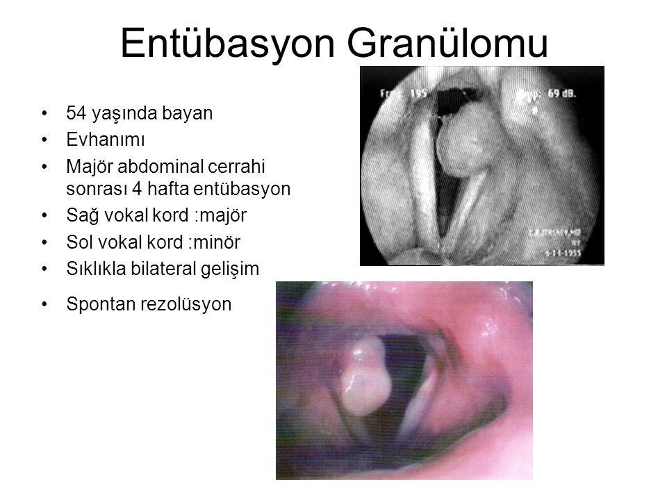 Entübasyon Granülomu •54 yaşında bayan •Evhanımı •Majör abdominal cerrahi sonrası 4 hafta entübasyon •Sağ vokal kord :majör •Sol vokal kord :minör •Sıklıkla bilateral gelişim •Spontan rezolüsyon