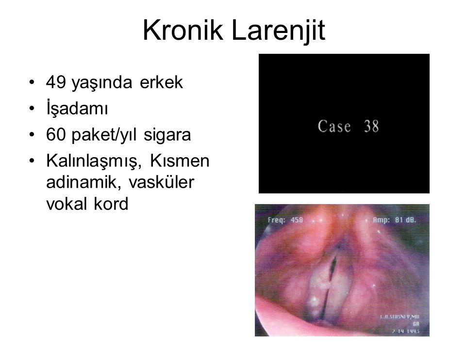Kronik Larenjit •49 yaşında erkek •İşadamı •60 paket/yıl sigara •Kalınlaşmış, Kısmen adinamik, vasküler vokal kord