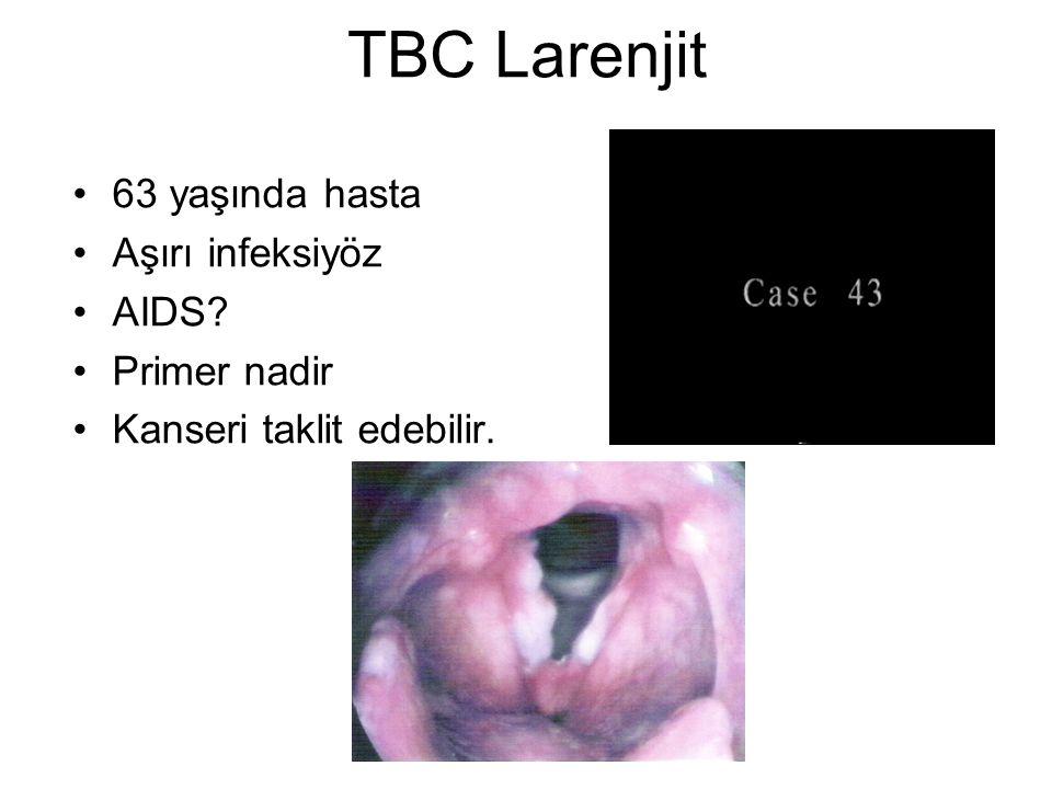 TBC Larenjit •63 yaşında hasta •Aşırı infeksiyöz •AIDS? •Primer nadir •Kanseri taklit edebilir.