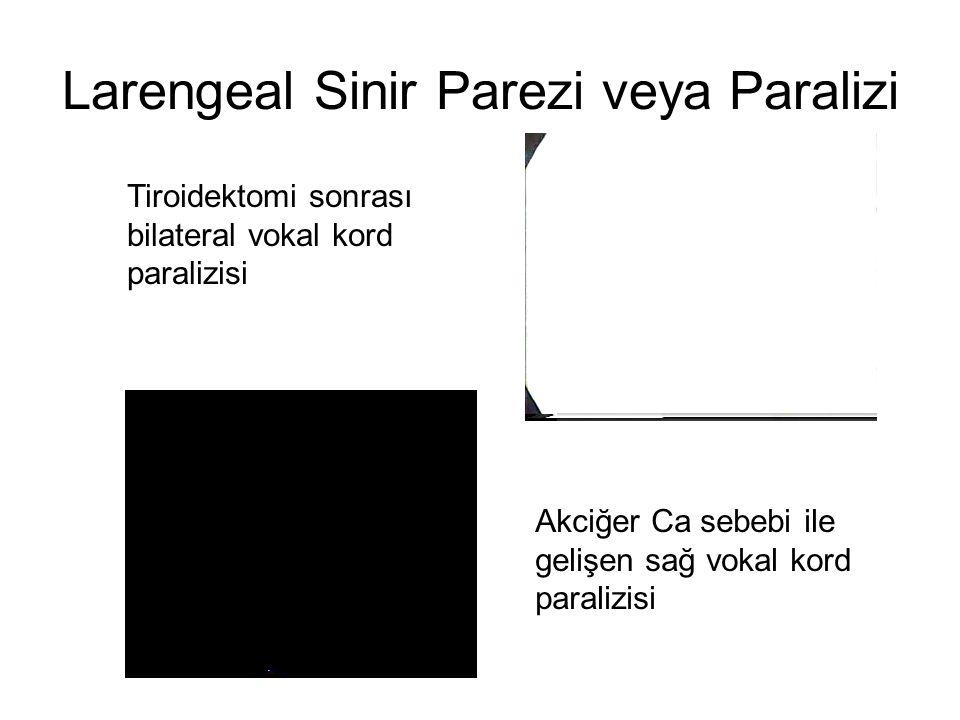 Larengeal Sinir Parezi veya Paralizi Tiroidektomi sonrası bilateral vokal kord paralizisi Akciğer Ca sebebi ile gelişen sağ vokal kord paralizisi