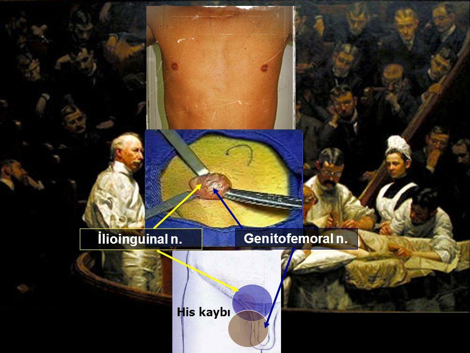 İlioinguinal n. Genitofemoral n. His kaybı