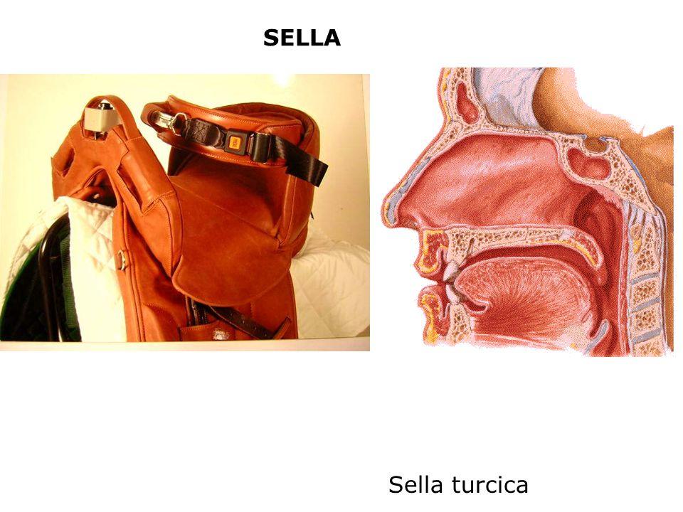 SELLA Sella turcica