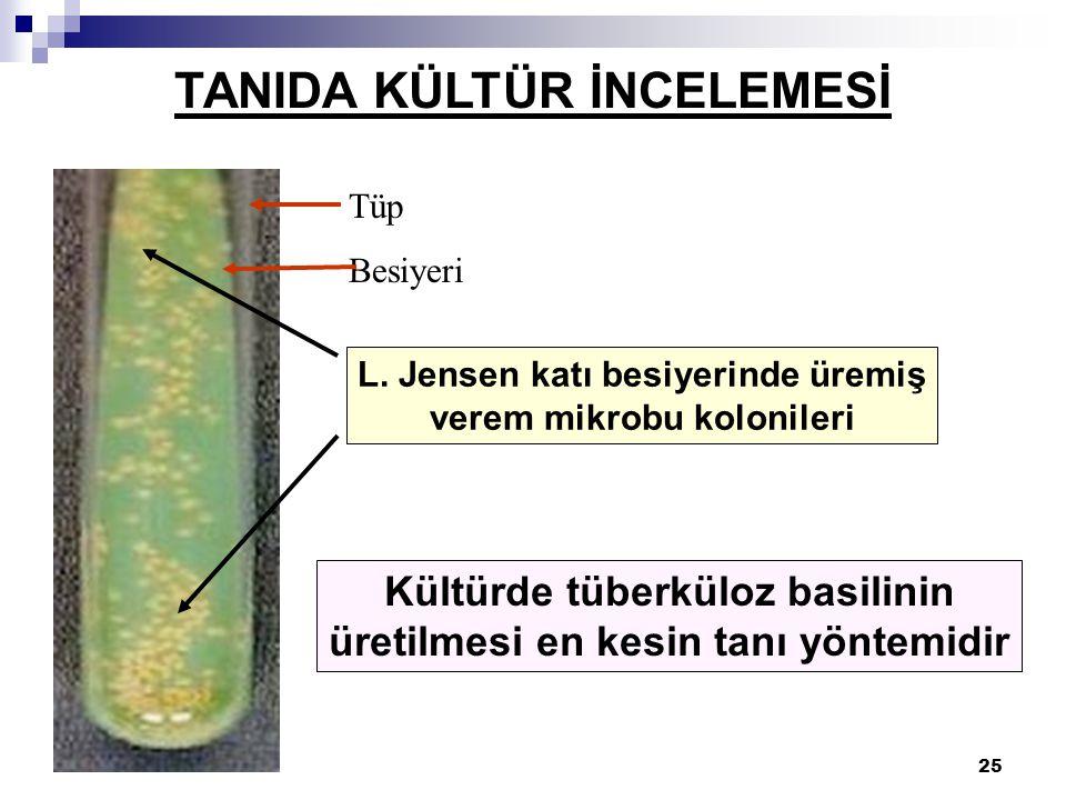 25 TANIDA KÜLTÜR İNCELEMESİ Kültürde tüberküloz basilinin üretilmesi en kesin tanı yöntemidir L. Jensen katı besiyerinde üremiş verem mikrobu kolonile
