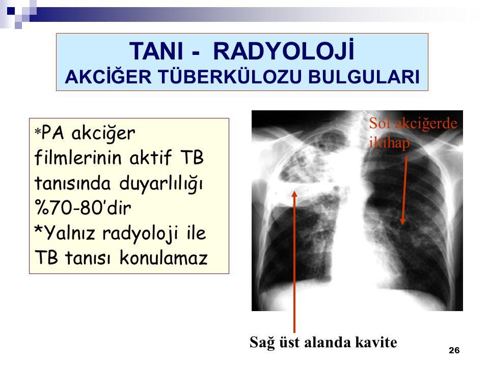 26 Sağ üst alanda kavite Sol akciğerde iltihap * PA akciğer filmlerinin aktif TB tanısında duyarlılığı %70-80'dir *Yalnız radyoloji ile TB tanısı konu